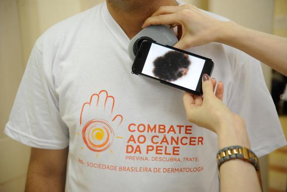 Pacientes são examinados durante campanha do Dia Nacional de Combate ao Câncer de Pele no Hospital Federal de Ipanema.(Fernando Frazão/Agência Brasil)